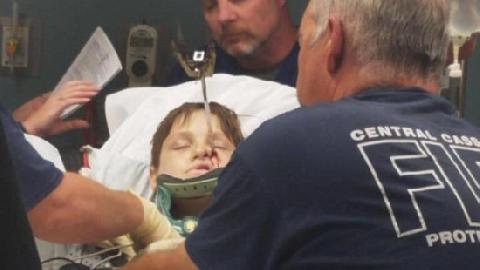 Thanh sắt xuyên thủng sọ, bé trai sống sót kỳ diệu