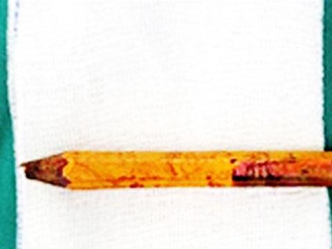 Kinh hoàng bé trai bị bút chì đâm thấu từ mông lên bụng