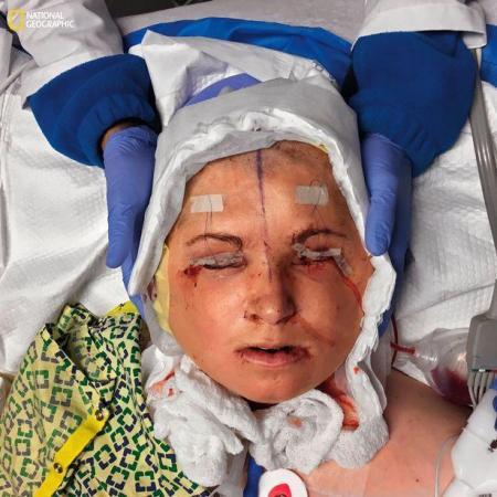 Hơn 3 năm sau khi tự dí súng vào cằm mình và bóp cò, Katie mới tiến hành phẫu thuật ghép mặt