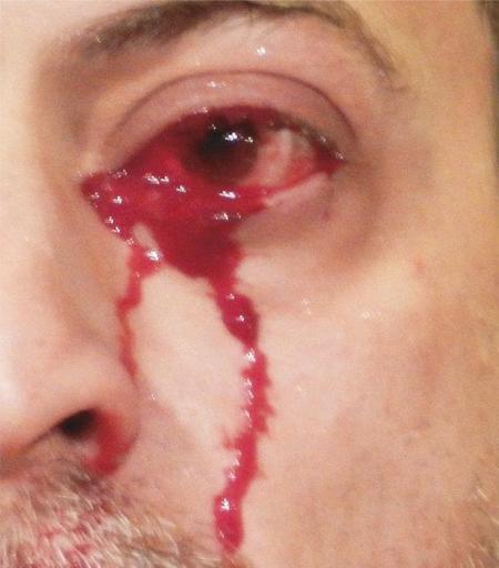 Bệnh nhân khóc ra máu suốt 1 giờ đồng hồ vì chứng bệnh hiếm gặp