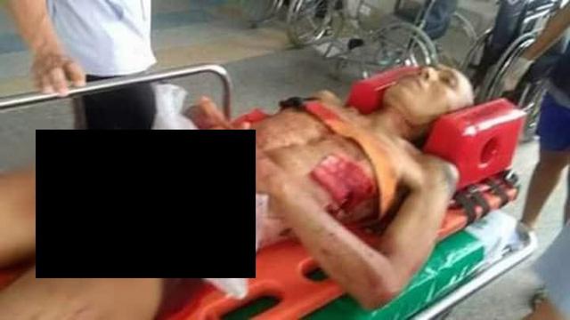Reawat Petnui, 41 tuổi, được đưa vào bệnh viện sau khi tự cắt của quý
