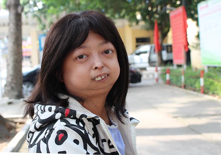 Nguyễn Mai Lan là con thứ hai trong gia đình có 3 người con, chỉ mình cô có vẻ ngoài khác biệt, do trận sốt nặng năm một tuổi. Ảnh: Phạm Nga.